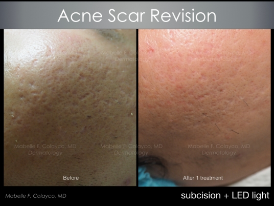 acne scar revision 2018 1b AM