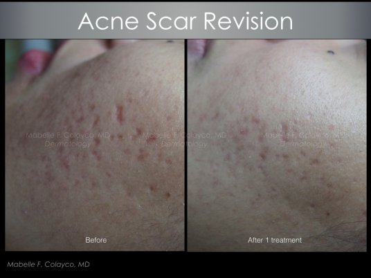 acne scar revision TCA CROSS.001