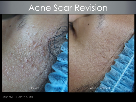 acne scar revision TCA CROSS.002