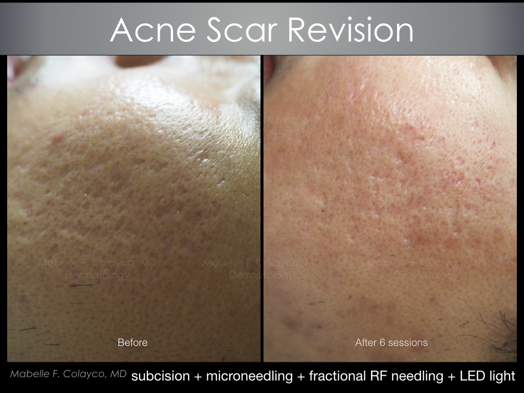 subcision + microneedling + fractional RF needling + LED light
